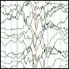 Atonic seizures