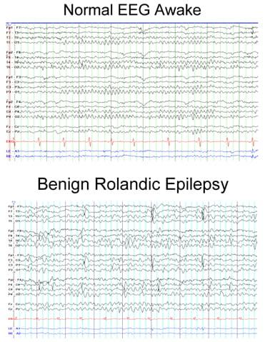 Normal EEG Awake compared to Benign Rolandic Epilepsy