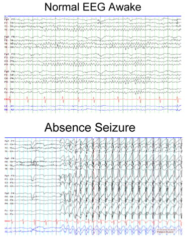 Normal EEG Awake compared to Absence Seizure