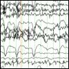 Complex-partial seizures