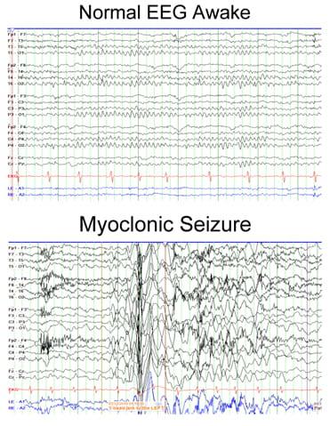 Juvenile Myoclonic Epilepsy (Janz's Syndrome) Symptoms & Treatment
