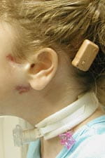 Bone-Anchored Hearing Appliance  in child with congenital aural atresia