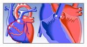 Congenital Heart Disease Education