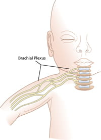 Brachial Plexus illustration