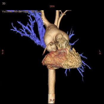 3D CT Image of Aorta and Hypoplastic Left Heart Syndrome